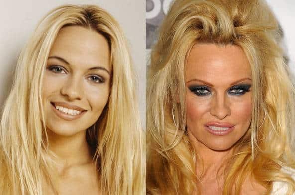 Pamela Anderson – MondoNews