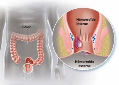 HEMOROIDECTOMIE-SCHITA-HEMOROIZI